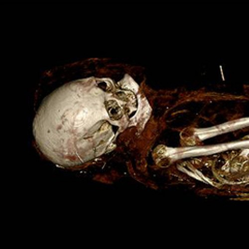 """The mummy """"Hatason,"""" Egyptian, Asyut, late New Kingdom (Dynasty 20) or Dynasty 21, 1100–1000 BC. FAMSF, gift of John P. Young, 2082. Image rendered by Anatomage"""