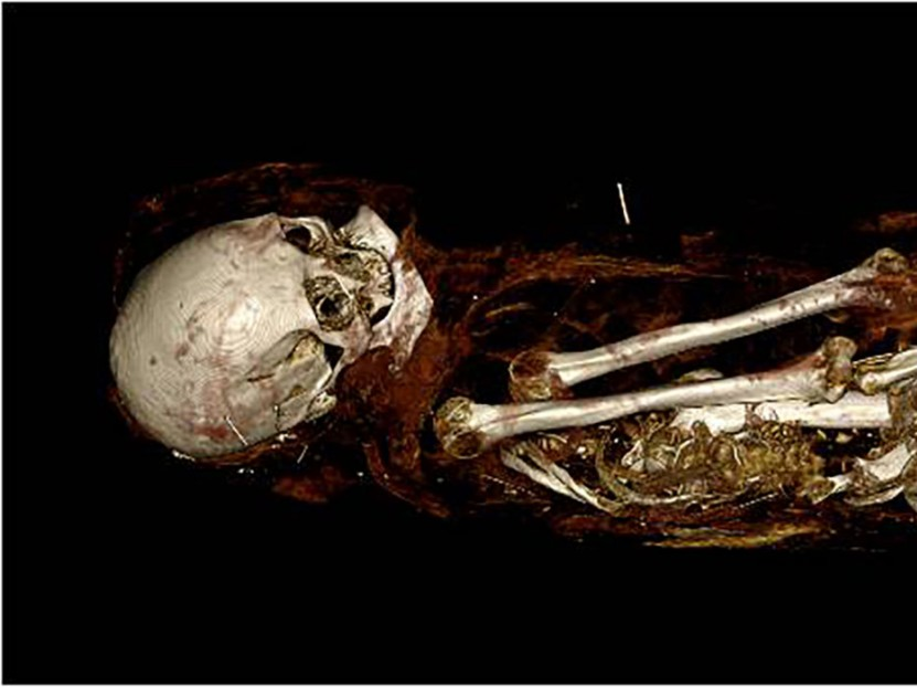 "The mummy ""Hatason,"" Egyptian, Asyut, late New Kingdom (Dynasty 20) or Dynasty 21, 1100–1000 BC. FAMSF, gift of John P. Young, 2082. Image rendered by Anatomage"