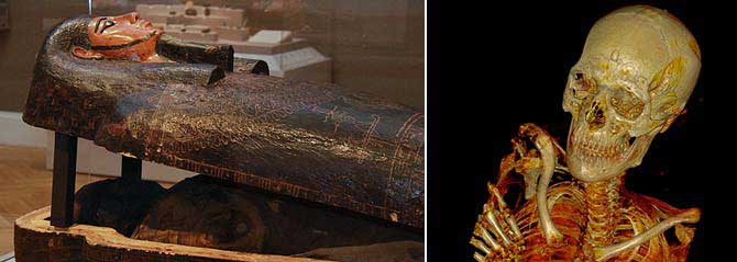 Very Postmortem: Mummies and Medicine